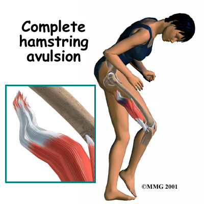 Physical Therapy in Twin Falls and Buhl for Hamstring
